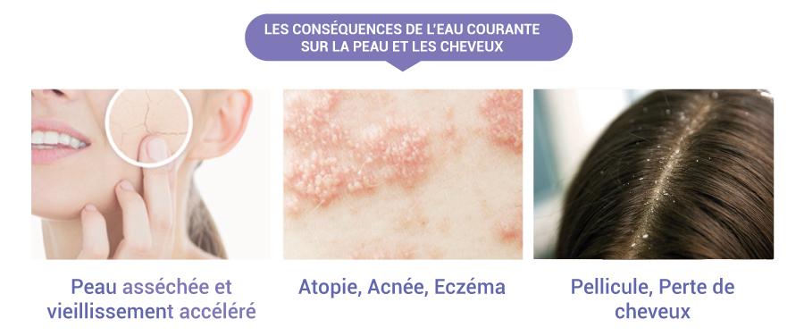 Conséquences peau eau courante